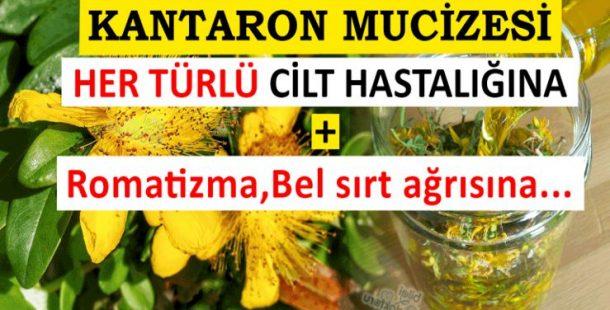 Sarı Kantaron Yağı Mucizesini hiç duydunuz mu? Bakın nelere iyi geliyor..
