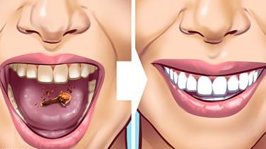 Dişlerinizdeki Tartarları Çıkarmanın 10 Yolu