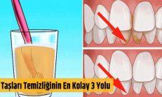 Diş Taşları Temizliğinin En Kolay Yolu