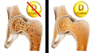 Vücudunuzun U-mutsuzca Daha D Vitamini İhtiyacı Olduğunu Gösteren İşaretler