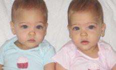 8 Yıl Önce 'Dünyanın En Güzel İkizleri' Dediler Bugünkü Hallerini Görenler Daha Da Şaşırıyor