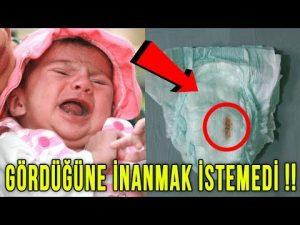 Sürekli  Bebek Ağlıyordu, Annesi Bezini Değiştirince Bir Olay Oldu.